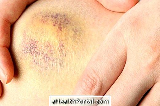 térd artrózisának plazmakezelése