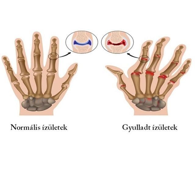 ízületi betegség a hüvelykujjon hogyan kell kezelni a lábak ízületeit gyógyszerek