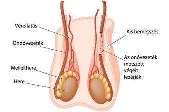 ízületi fájdalom elleni fogamzásgátló)