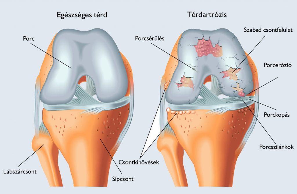 térdízület kezelés suprapatellaris synovitis)