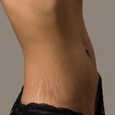 enyhítse az ízületi fájdalmat duzzanat a könyökízületen fájdalom nélkül