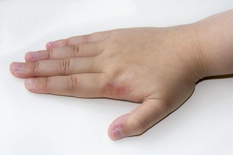 az ujjak kiütésének kezelése)