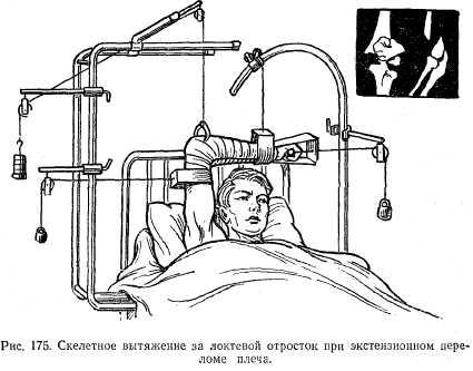 carpalízület sérülése