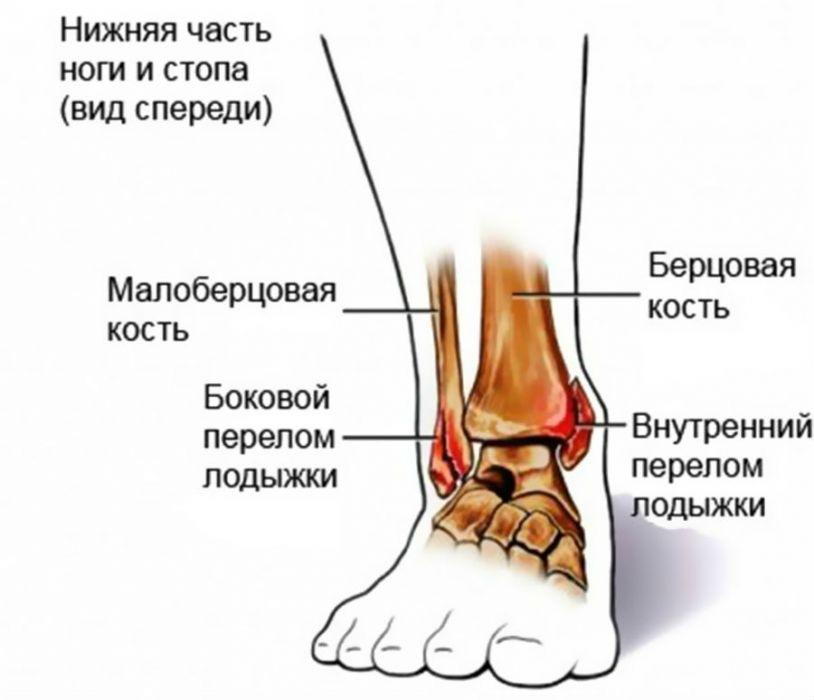 az artrózis különbsége a bokaízület artritiszétől