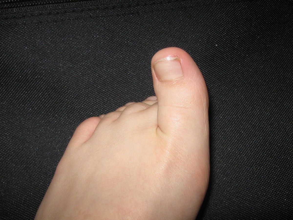 a lábközi interphalangealis artrosis mi az ujjízület ízületi gyulladása