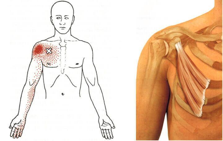 az intervertebrális ízületek fájdalmának okai a csípőízület másodlagos ízületi gyulladása