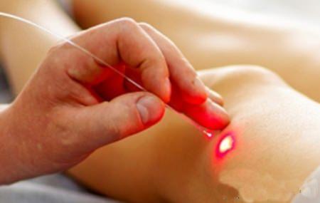 fizioterápiás módszerek a deformáló ízületi gyulladás kezelésére lábujjízületek betegsége