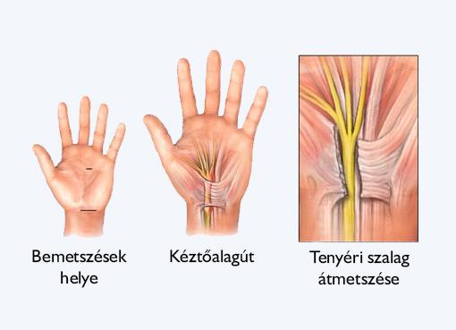 carpal gyulladás és annak kezelése)