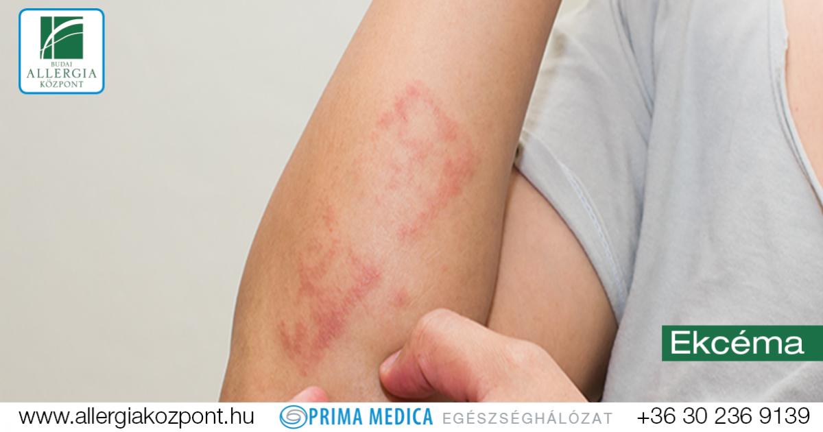 könyökízületi tünetek és kenőcs kezelése)