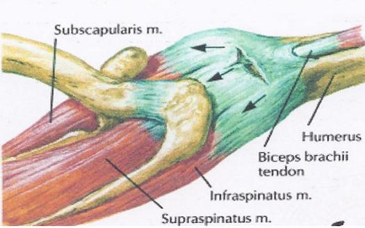 a könyökízület ii. fokú deformáló artrózisa)