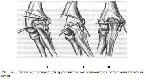 a bokaízület epifiziolízise