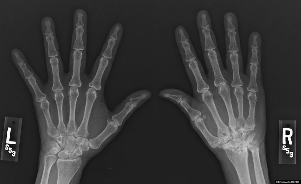 orvosi enciklopédia térd artrózis)