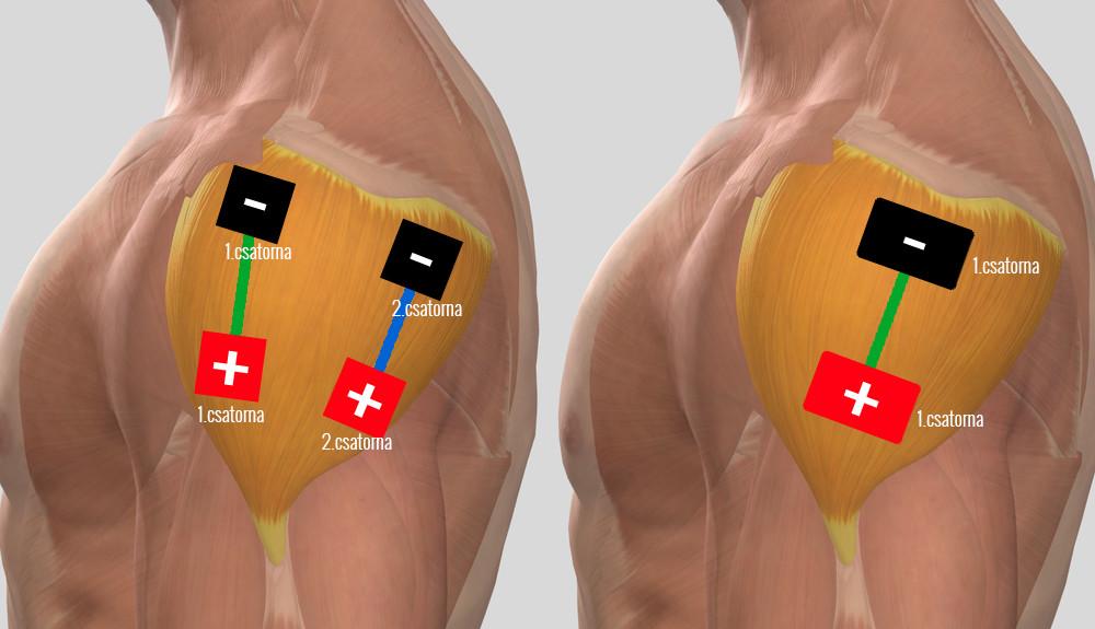 hogyan kell kezelni a vállízület artrózisát)