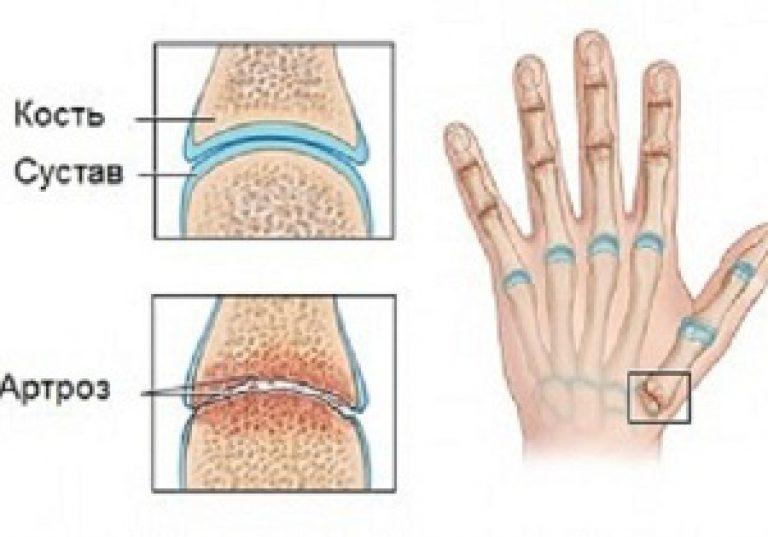ujjak artrózisának kezelésére szolgáló készítmények