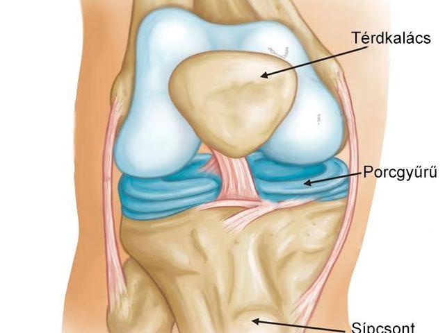 akut húzási fájdalom a térdízületben