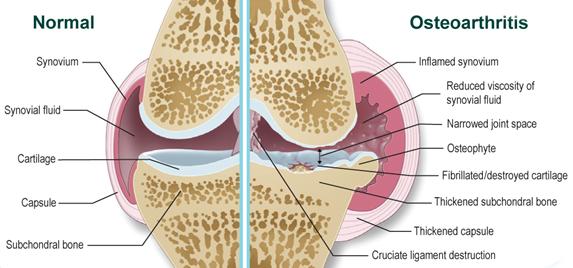 A hatékony protézis szinoviális folyadékának áttekintése