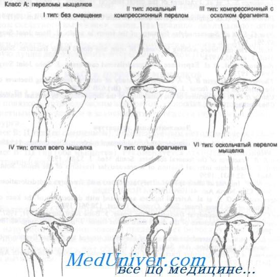 a térd ízületi röntgenfelvétele)