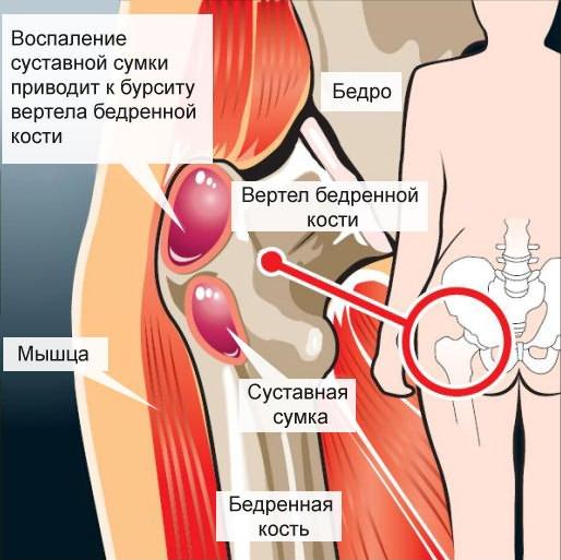 a csípőízületek kezdeti deformáló artrózisa