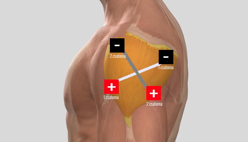 mi a vállízület artritisz kezelése)