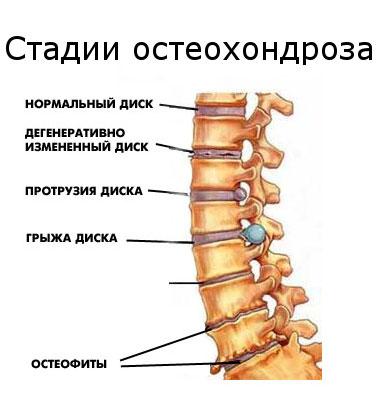 méhnyakos osteochondrozis kezelése)