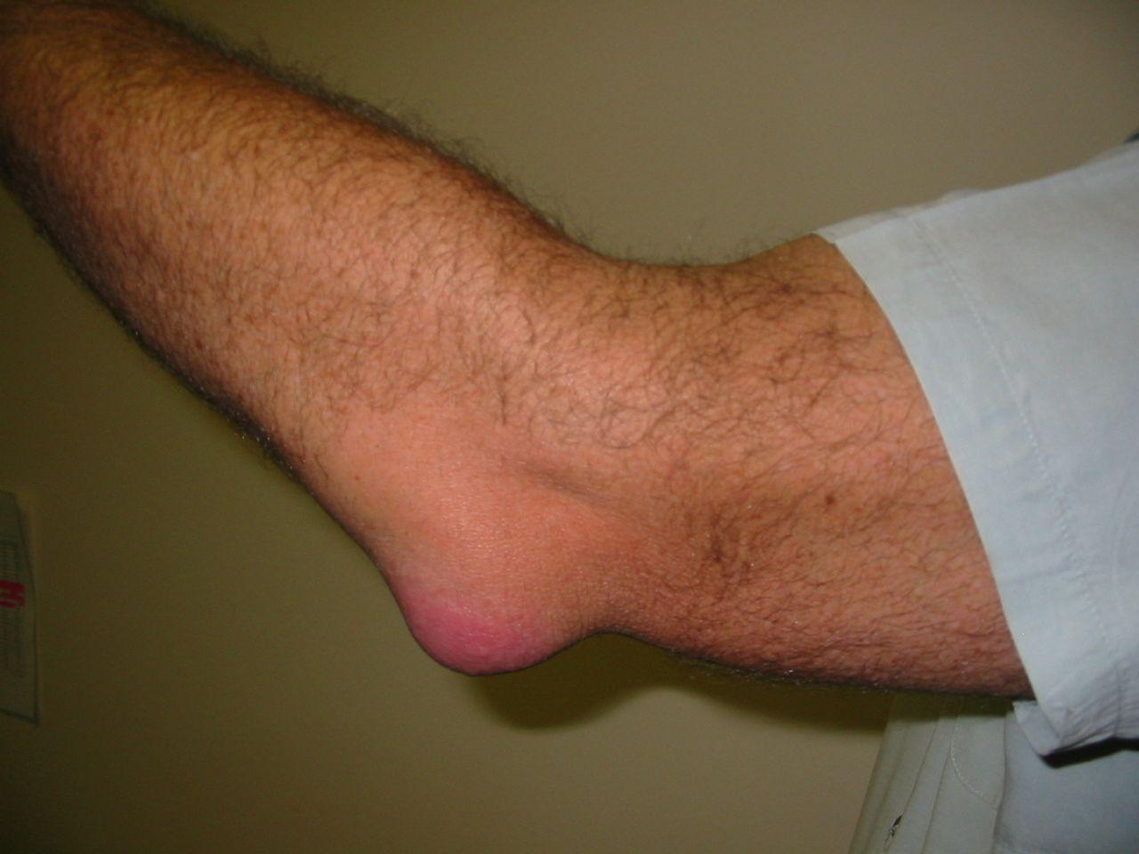 könyök bursitis hogyan kell kezelni otthon artrózis súlyosbító kezelés