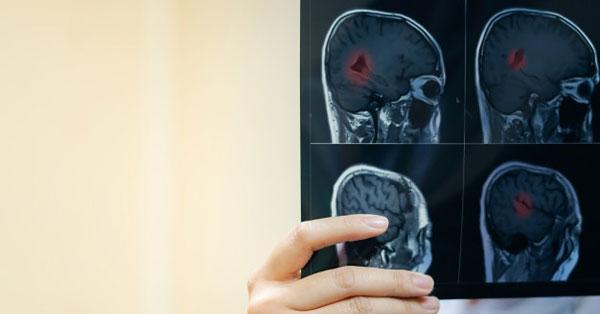súlyos ízületi fájdalom stroke után