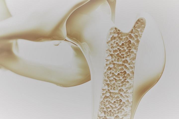 csontritkulás kezelési krém