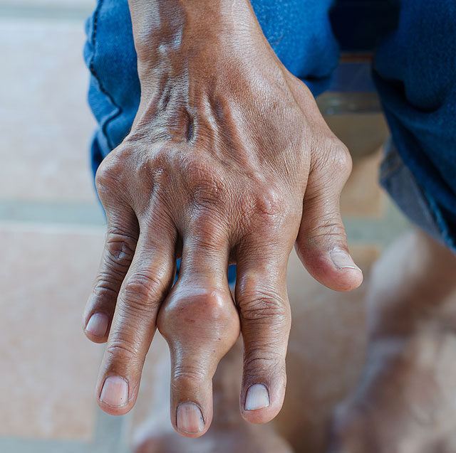 fájdalom a középső ujj ízületében munka után)