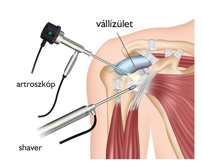 fájdalom a vállízület artroplasztikája után)