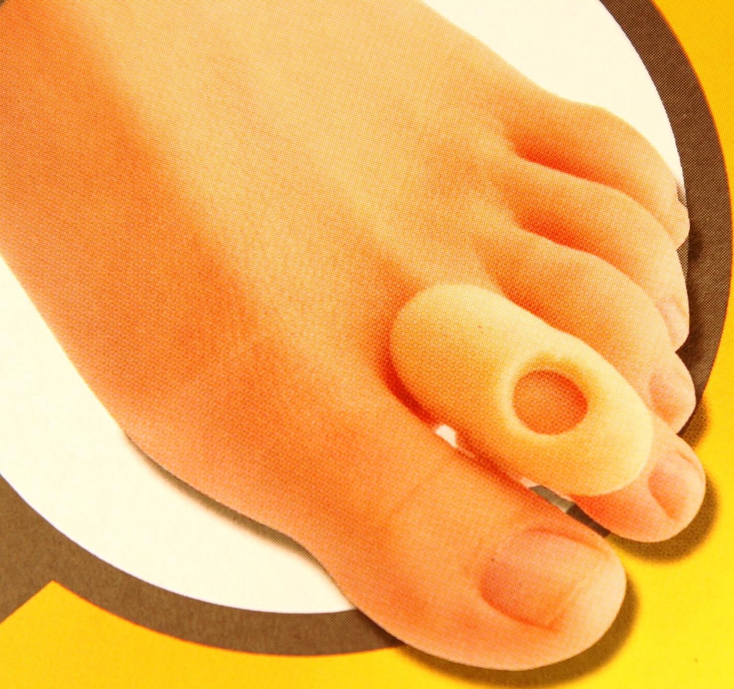 hogyan kell kezelni a lábujjak ízületi gyulladását)