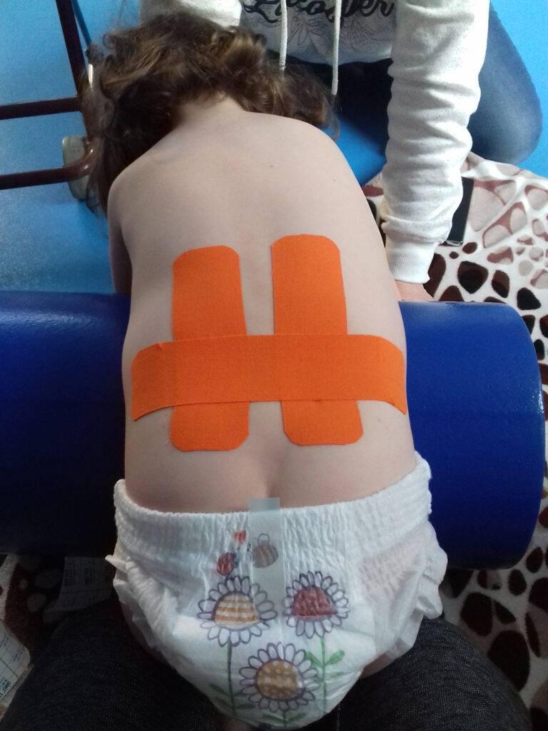 kineziológiai együttes kezelés)