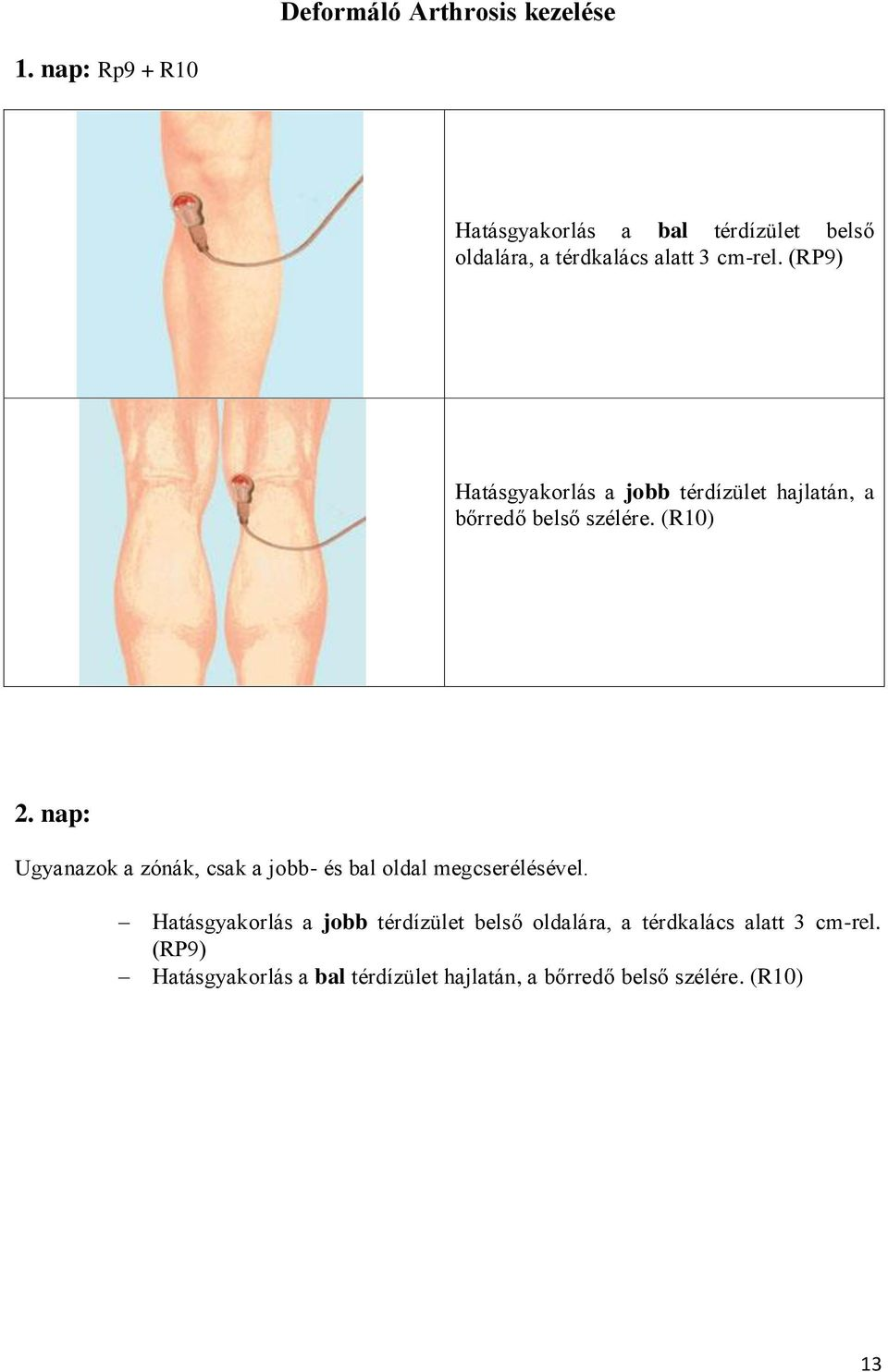 térdízületi kezelési rendszer)
