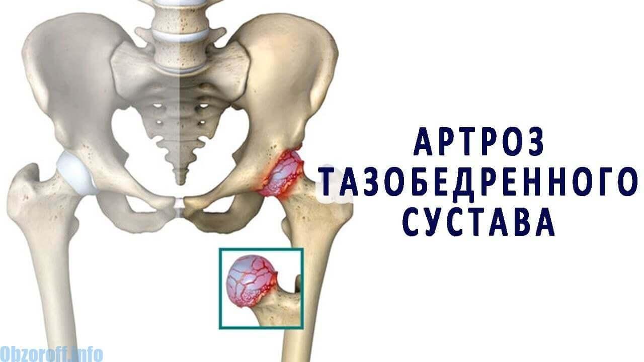 csípőízületi gyulladás kezelési módszerei