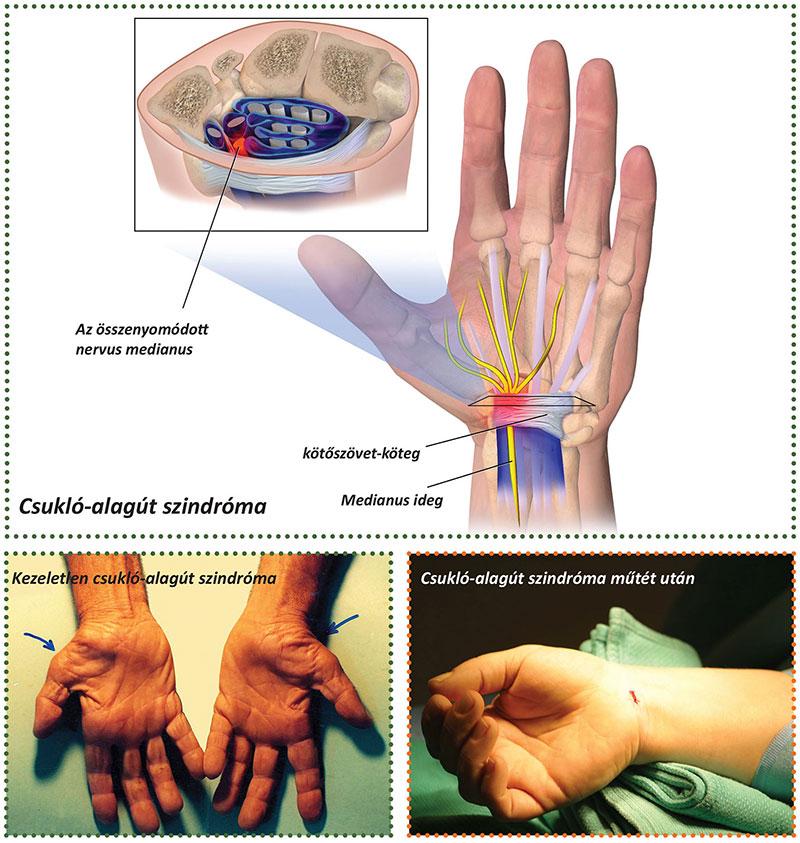 ízületi fájdalom artrózisa a vállízület fórumában)
