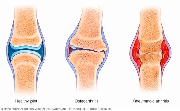 boka sérülés utáni gyógyulás hogyan kezeljük otthon a lábak és a karok ízületeit