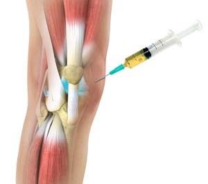 csípő artrózisának chondrogard kezelése az ujj ízülete fájni kezdett