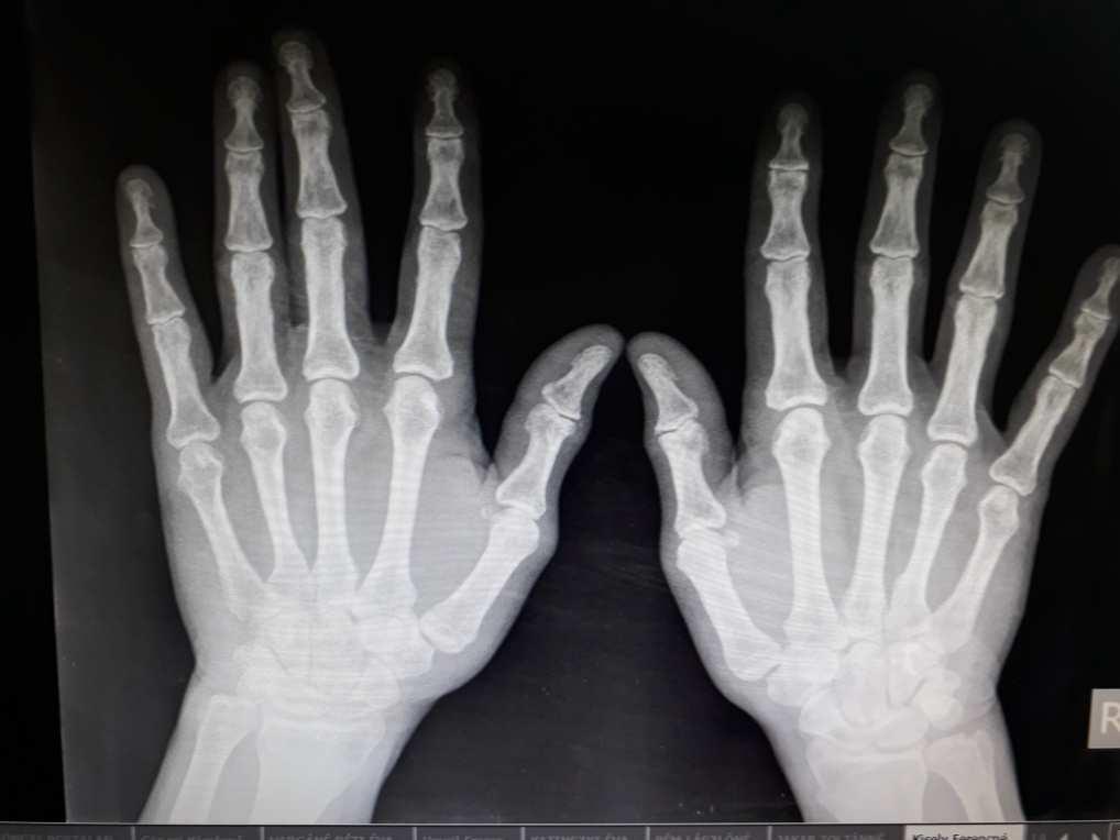 a kéz ízületeinek deformációja rheumatoid arthritisben