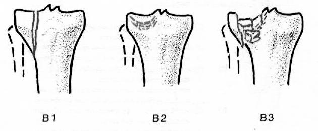 az első szakasz térdízületének deformáló artrózisa