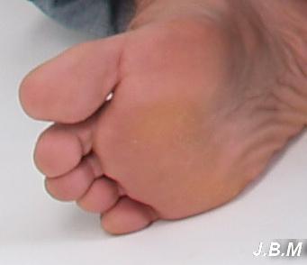 a nagy lábujj artrózisa, mint a kezelés