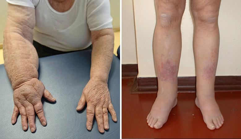masszázs a lábak ízületeinek fájdalma érdekében