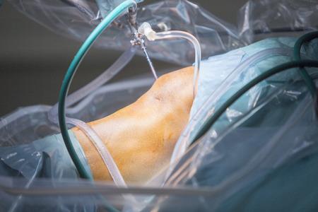 térd artroszkópos kezelése