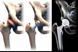 coxarthrosis vagy a csípő tünetei