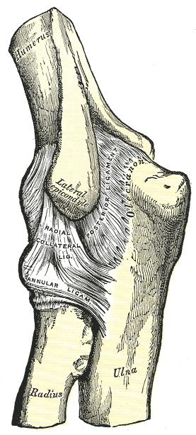 külső könyökízület epicondylitis kezelése)