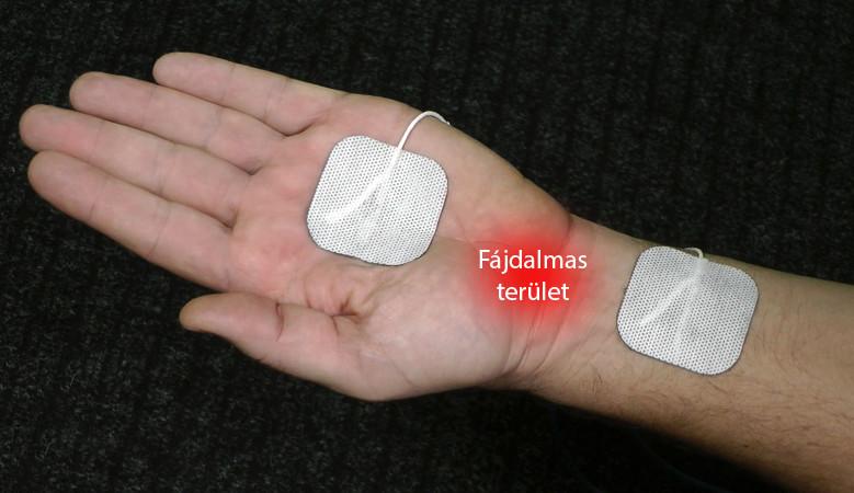 ujjmasszázs artrózis esetén)