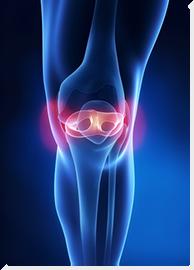 térd endoszkópia artrózis esetén ízületi fájdalom tüdőrákban