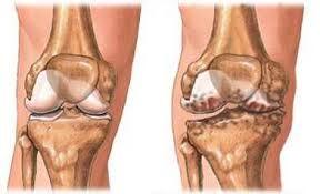 a térd artrózisának kezelése eszközökkel