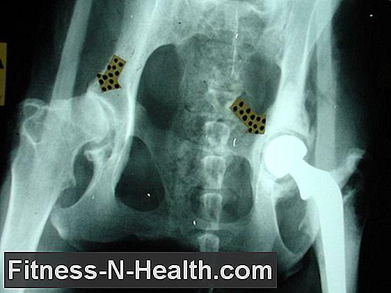 coxarthrosis ízületi betegség)