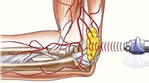 könyökfájdalom kezelésének okai testkiütés ízületi fájdalom