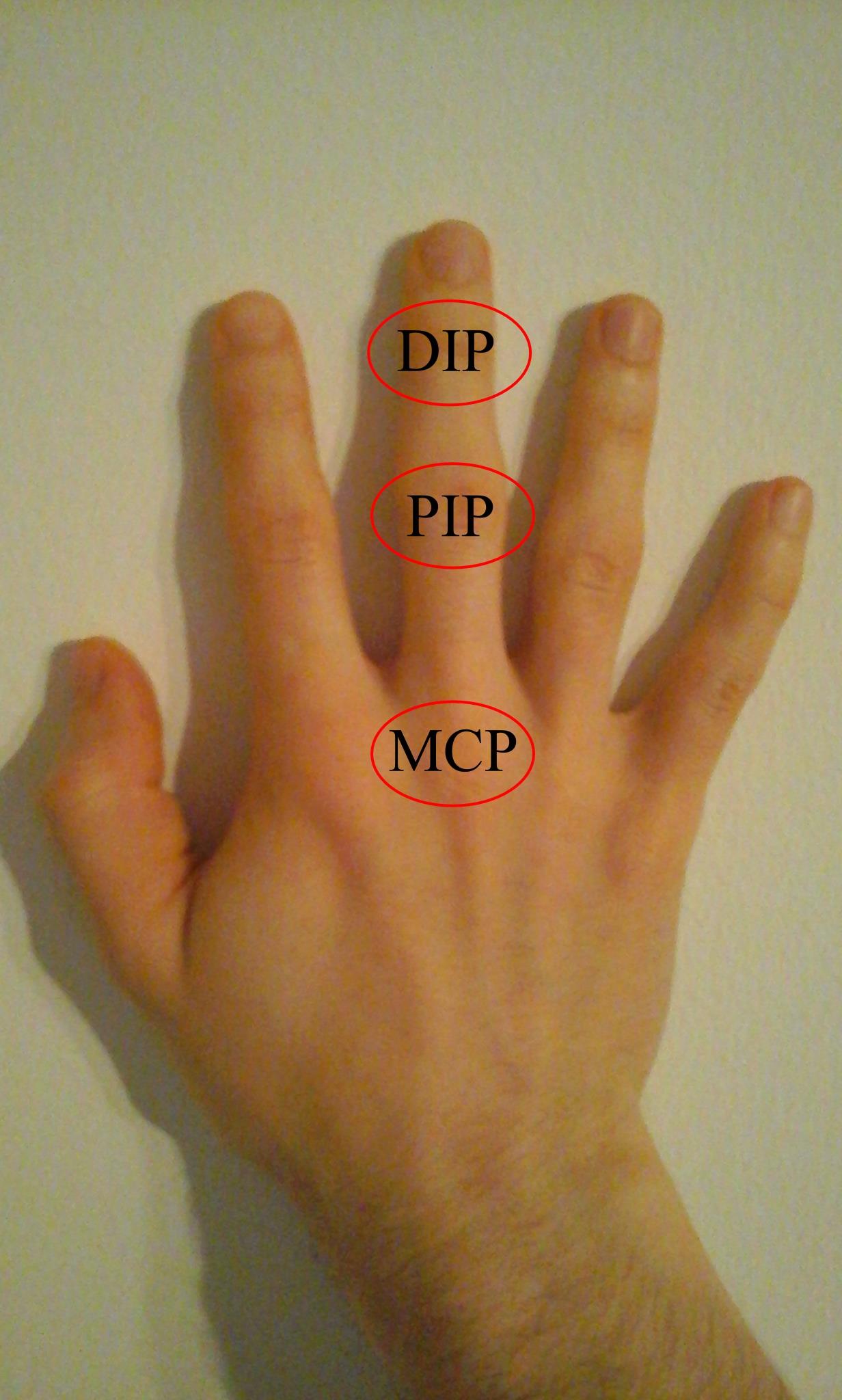 a láb és a kéz kis ízületeinek ízületi gyulladása)