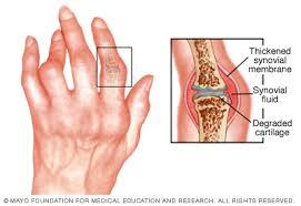 kalcium- és ízületi fájdalmak